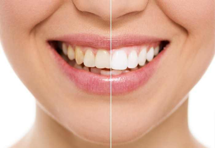 cách làm trắng răng, làm trắng răng tự nhiên, cách làm trắng răng tự nhiên