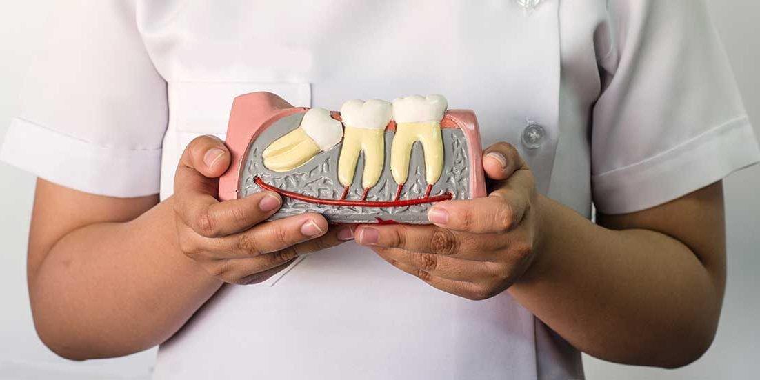 Nhổ răng khôn bao nhiêu tiền?