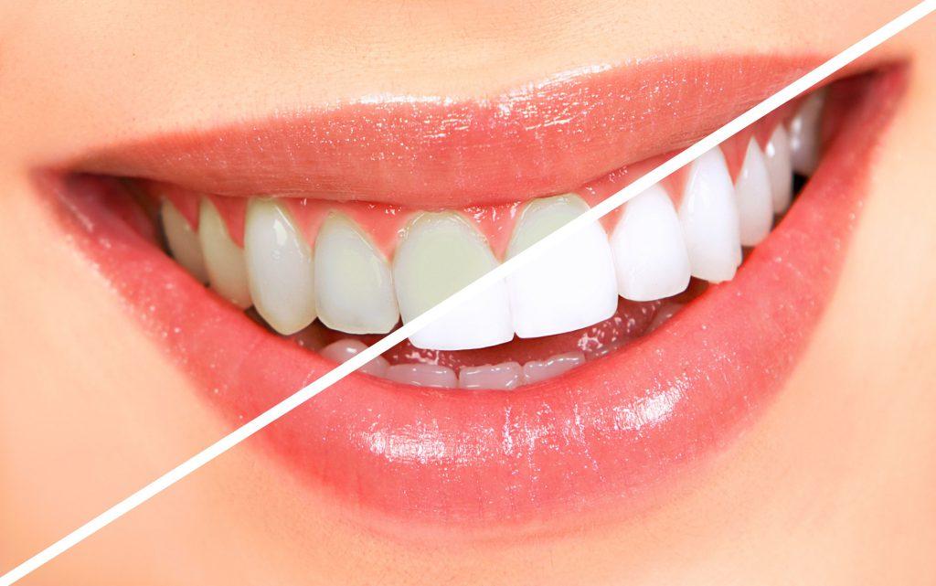 có nên tẩy trắng răng, tẩy trắng răng có tốt không