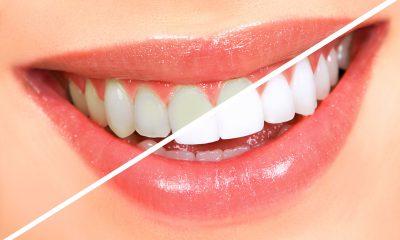 Có nên tẩy trắng răng không? Những điều cần biết khi tẩy trắng răng