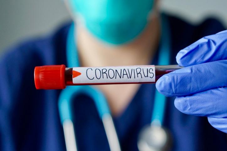 dấu hiệu nhiễm covid19, dấu hiệu mắc covid 19, dấu hiệu covid19