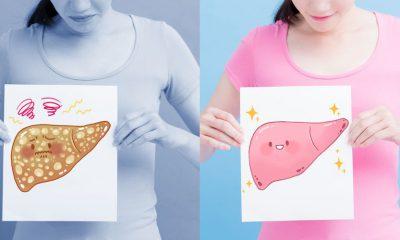 Gan nhiễm mỡ nên ăn gì? Gợi ý top thực phẩm lành mạnh nhất